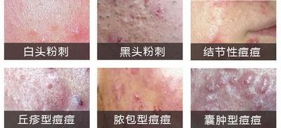不同类型青春痘的症状及治疗费用