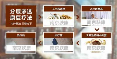 南京治疗鱼鳞病要花多少钱